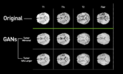 Deep learning en resonancias magnéticas sintéticas